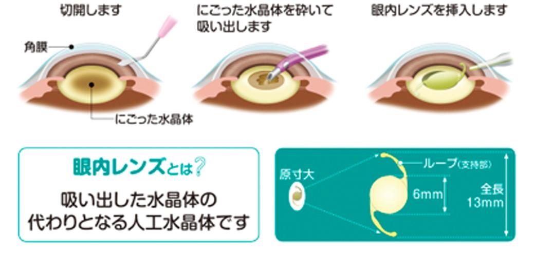 手術は局所麻酔で顕微鏡を使って行います